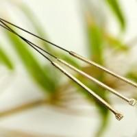 Moderne- og kinesisk akupunktur